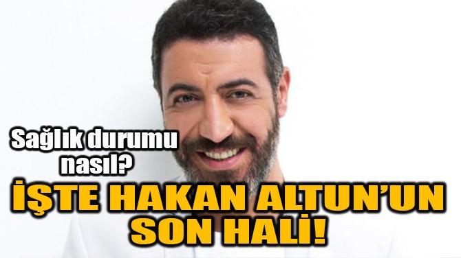 İŞTE HAKAN ALTUN'UN SON HALİ!