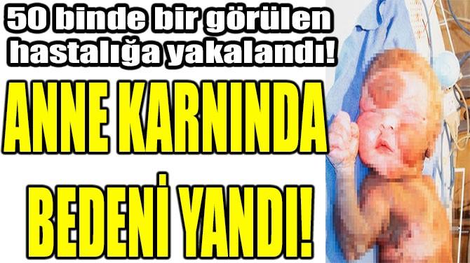 ANNE KARNINDA  BEDENİ YANDI!