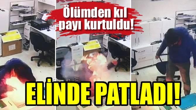 ELİNDE PATLADI!