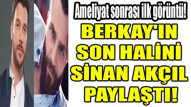 BERKAY'IN SON HALİNİ SİNAN AKÇIL PAYLAŞTI!