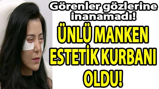 ÜNLÜ MANKEN ESTETİK  KURBANI OLDU!