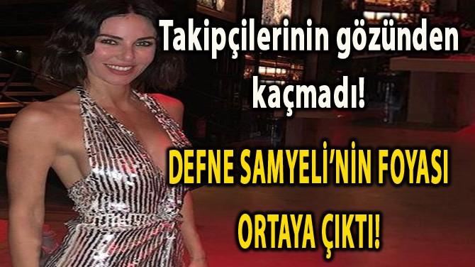 DEFNE SAMYELİ BACAK BOYUNU UZATTI!