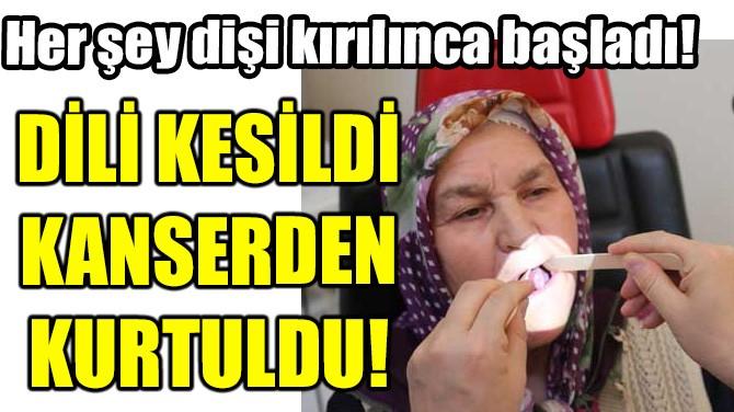 DİLİ KESİLDİ KANSERDEN KURTULDU!