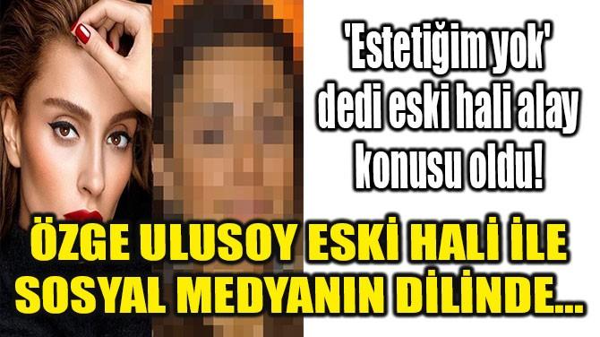 ÖZGE ULUSOY YILLAR ÖNCEKİ HALİ İLE SOSYAL MEDYANIN DİLİNDE...