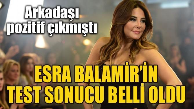 ESRA BALAMİR'İN CORONA VİRÜS TEST SONUCU BELLİ OLDU!