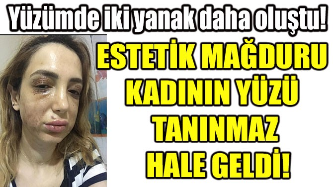 ESTETİK MAĞDURU  KADININ YÜZÜ  TANINMAZ  HALE GELDİ!