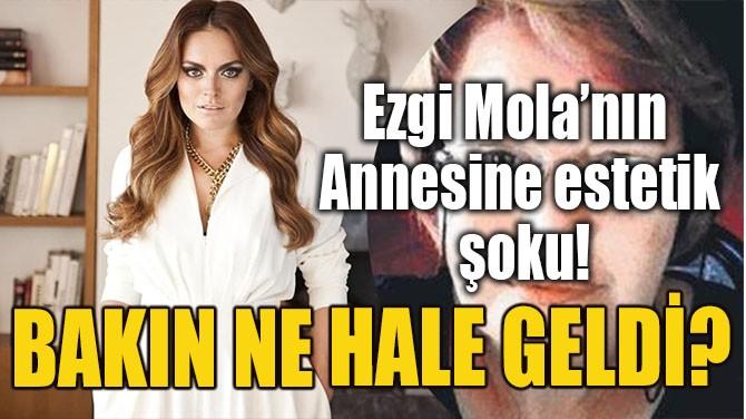 EZGİ MOLA'NIN ANNESİNE ESTETİK ŞOKU!