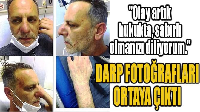 OZAN GÜVEN'İN DE DARP FOTOĞRAFLARI ORTAYA ÇIKTI