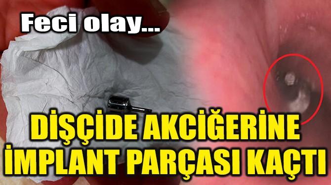 DİŞÇİDE AKCİĞERİNE İMPLANT PARÇASI KAÇTI!