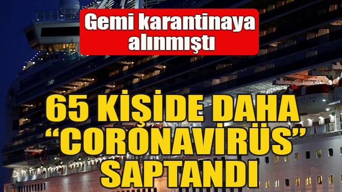 """65 KİŞİDE DAHA """"CORONAVİRÜS"""" SAPTANDI"""
