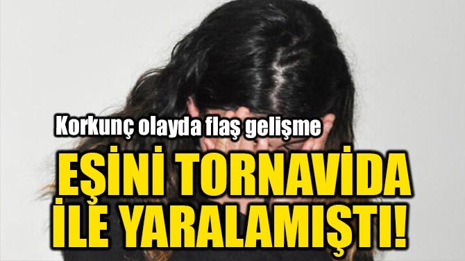 EŞİNİ TORNAVİDA İLE YARALAMIŞTI!