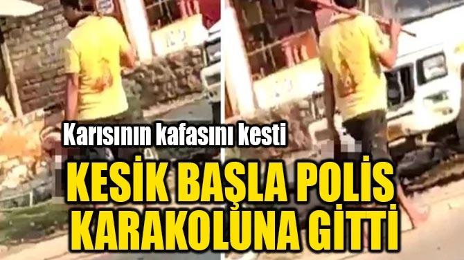 KESİK BAŞLA POLİS KARAKOLUNA GİTTİ