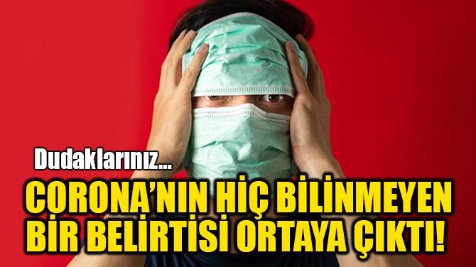 CORONA'NIN HİÇ BİLİNMEYEN BİR BELİRTİSİ ORTAYA ÇIKTI!