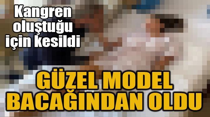 ÜNLÜ MODELİN BACAĞI KESİLDİ!