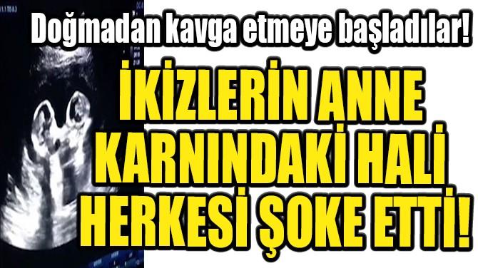 İKİZLERİN ANNE KARNINDAKİ HALİ HERKESİ ŞOKE ETTİ!