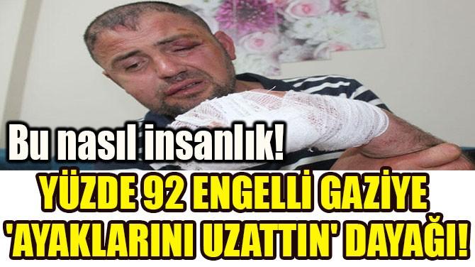 YÜZDE 92 ENGELLİ  GAZİYE 'AYAKLARINI  UZATTIN' DAYAĞI!