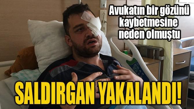 SALDIRGAN YAKALANDI!