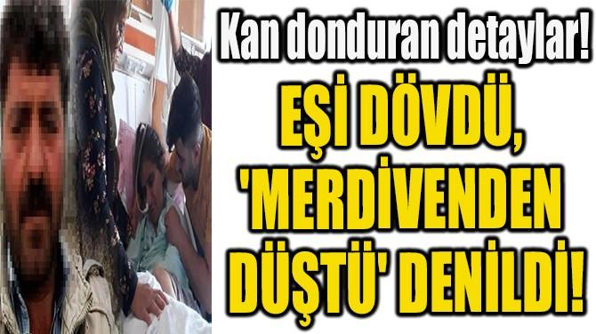 EŞİ DÖVDÜ, 'MERDİVENDEN DÜŞTÜ' DENİLDİ!