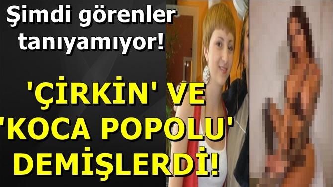 'ÇİRKİN' VE 'KOCA POPOLU' DEMİŞLERDİ ŞİMDİ GÖRENLER TANIYAMIYOR!