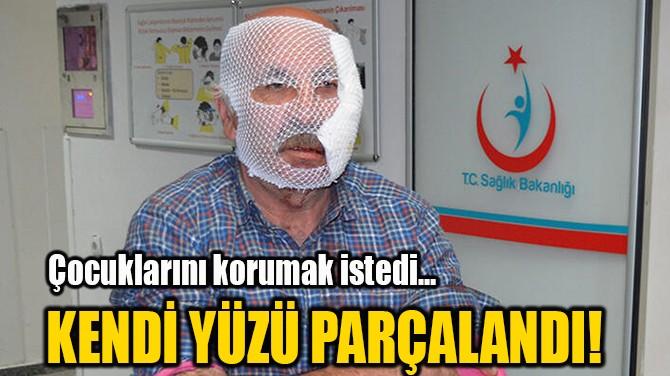 KENDİ YÜZÜ PARÇALANDI!
