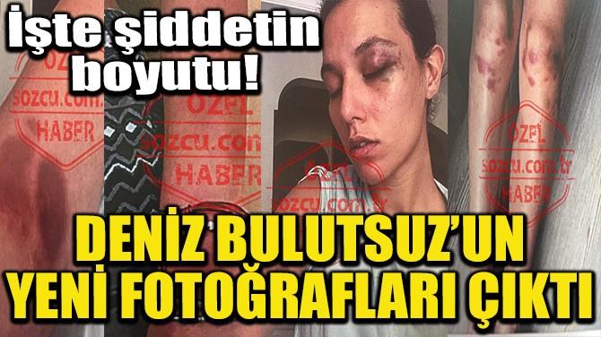 DENİZ BULUTSUZ'UN YENİ FOTOĞRAFLARI ÇIKTI