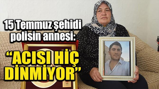 """""""ACISI HİÇ DİNMİYOR"""""""