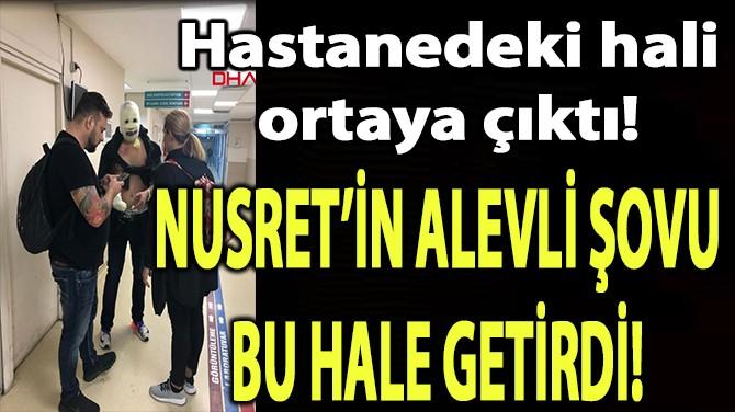 NUSRET'İN ALEVLİ ŞOVU BU HALE GETİRDİ!