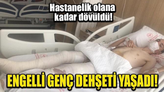 ENGELLİ GENÇ DEHŞETİ YAŞADI!