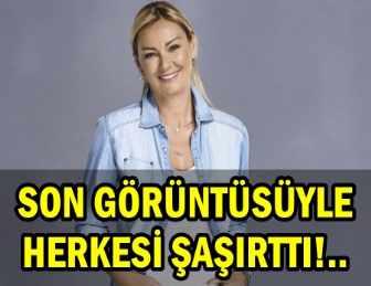 NEREDEYSE GÖZLERİ KAPANDI!..PINAR ALTUĞ BOTOKSU ABARTTI!..