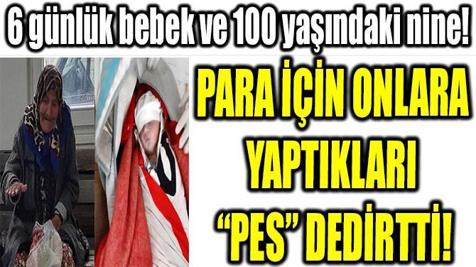 """PARA İÇİN ONLARA  YAPTIKLARI  """"PES"""" DEDİRTTİ!"""
