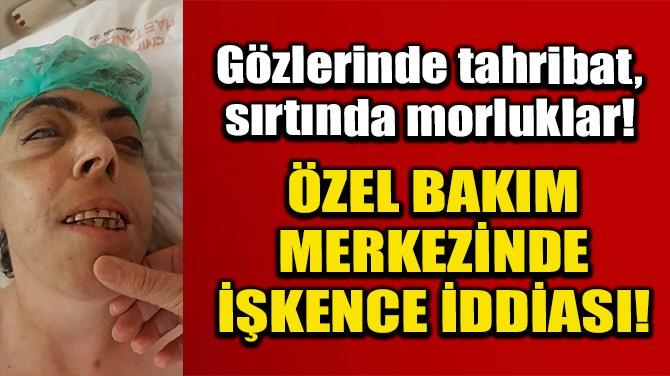 ADANA'DA ÖZEL BAKIM MERKEZİNDE İŞKENCE İDDİASI!